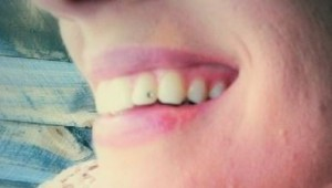 WiMo Teeth